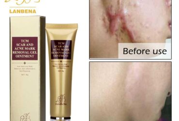 Acne Scar Mark Removal Cream