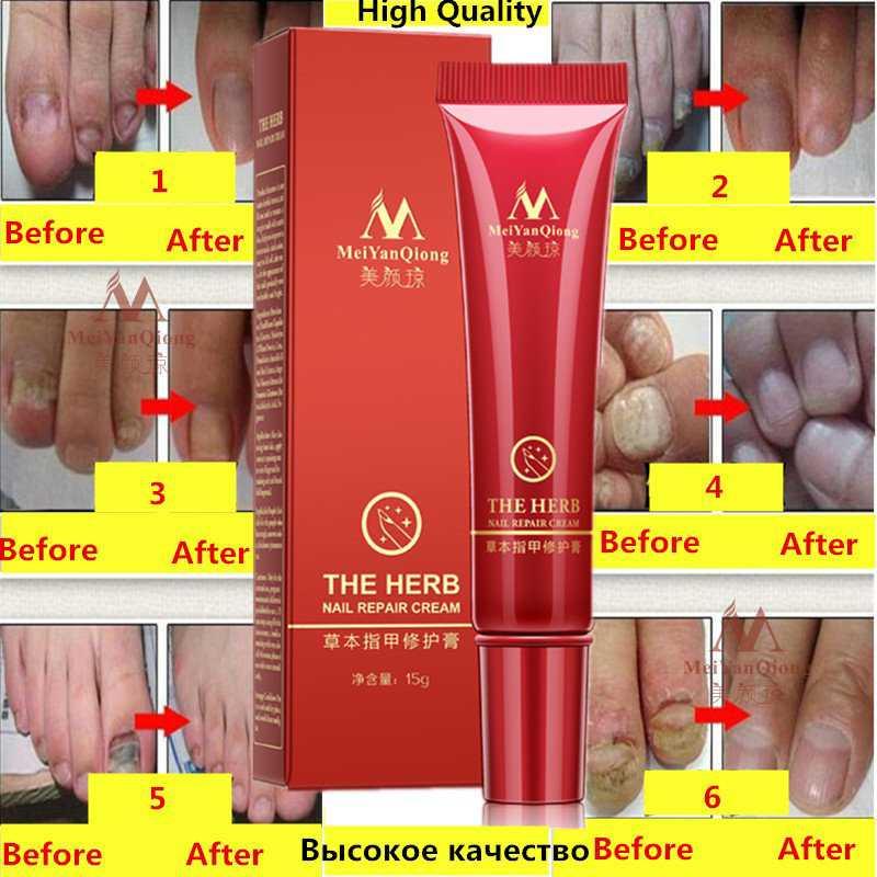 Nail Repair Cream