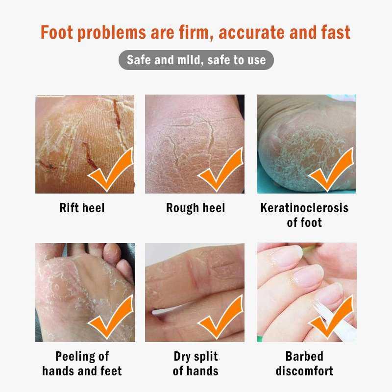 Foot Care Dead Skin Remover