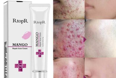 Repair Acne Cream
